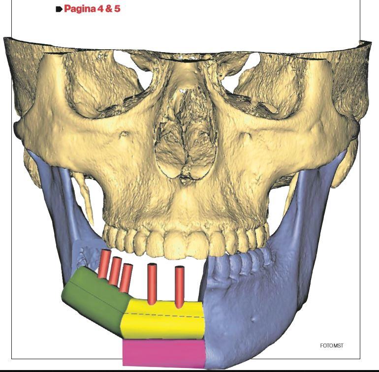 Printtechnologie & implantaten