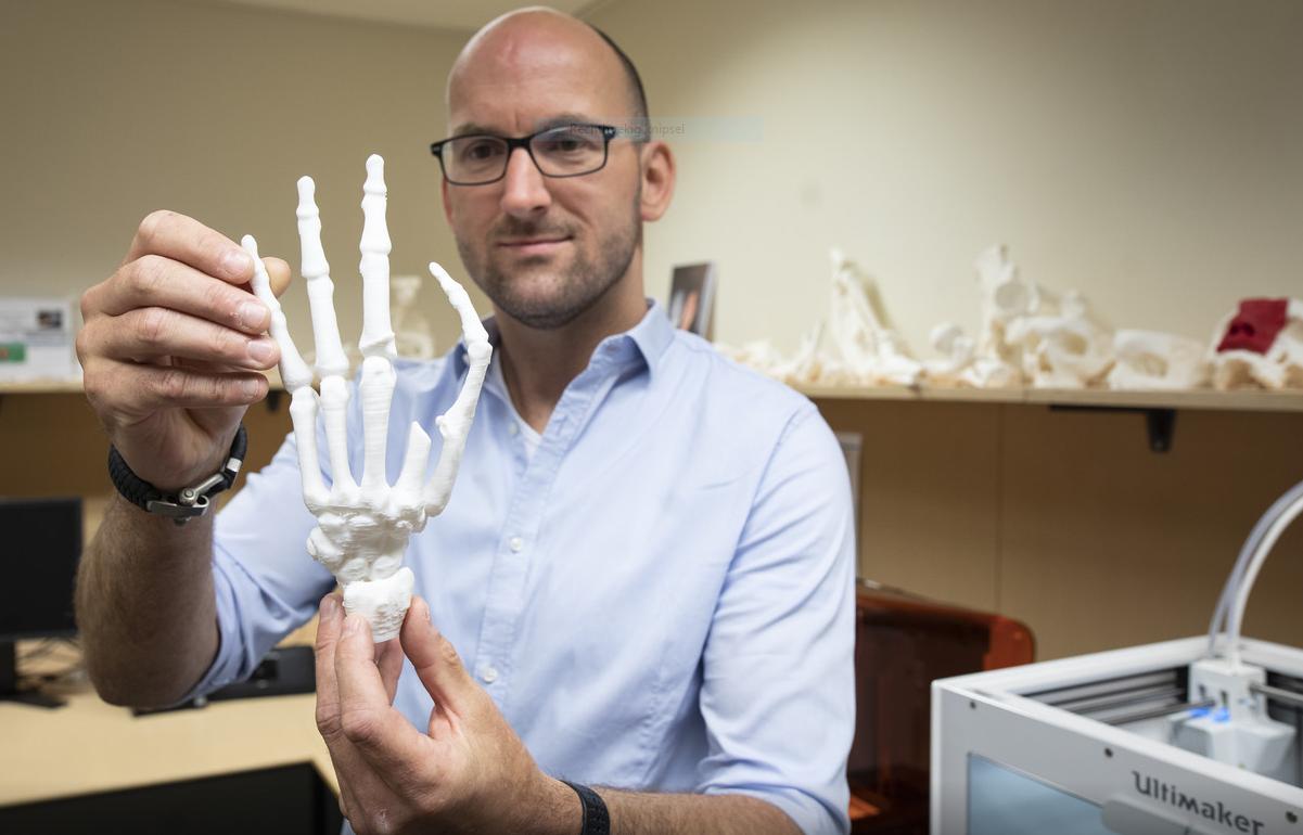 Ledematen 3D-printen voor de zorg